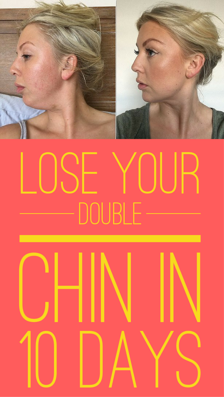 how to get rid of double chin - face fat in a week if not