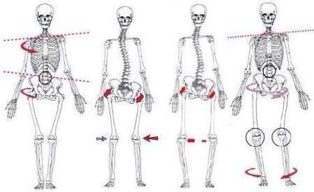 rotated pelvis - Google Search | LLD | 건강 운동, 근육 및 건강