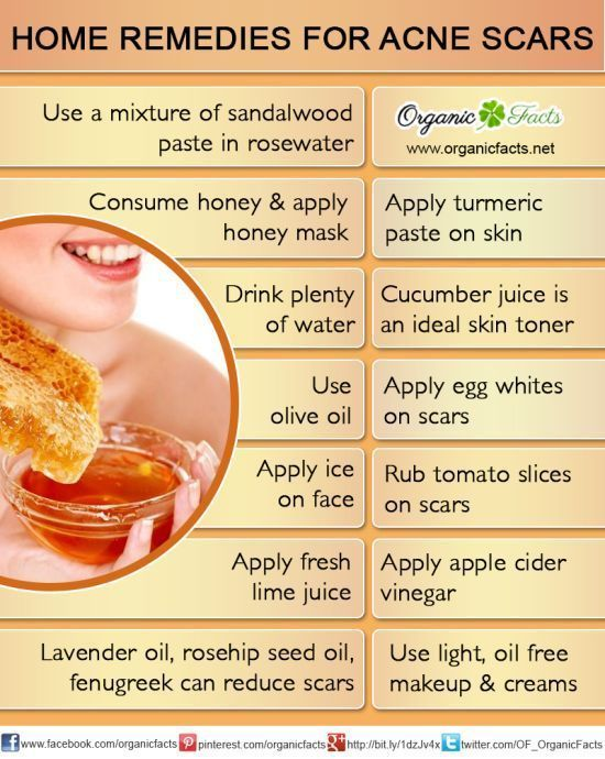 how to take color out of hair home remedy