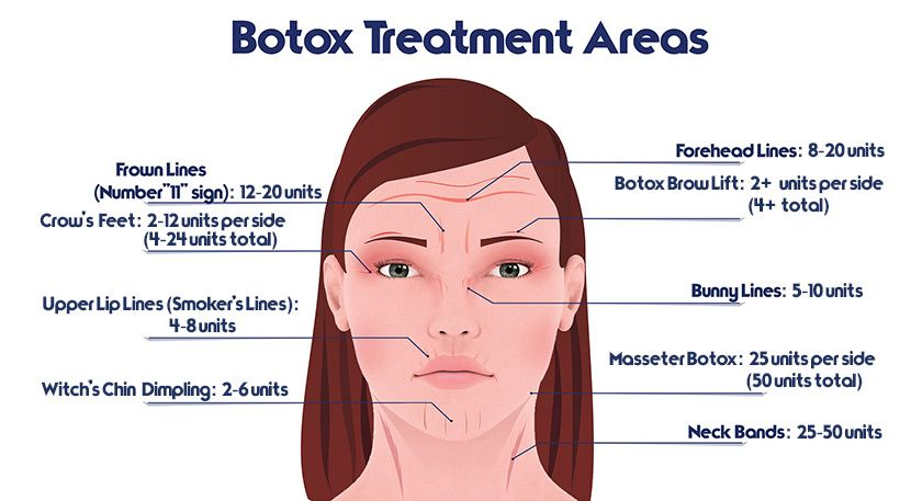image result for botox injection sites diagram botox trabecular meshwork diagram eyebrow lift diagram #1