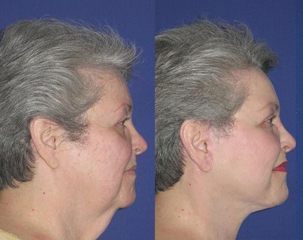 Linda, 65 – Youthful Reflections Facelift / Reflection Lift Fractional Co2 Laser Skin Resurfacing Upper Blepharoplasty