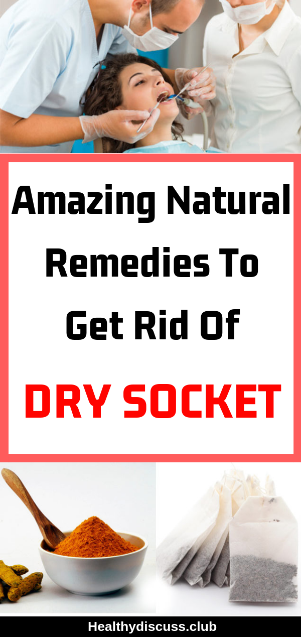 Amazing Natural Remedies To Get Rid Of Dry Socket Dental Hygiene