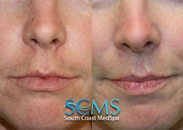 Actual Scms Patient Laser Hair Removal Upper Lip Laser Hair