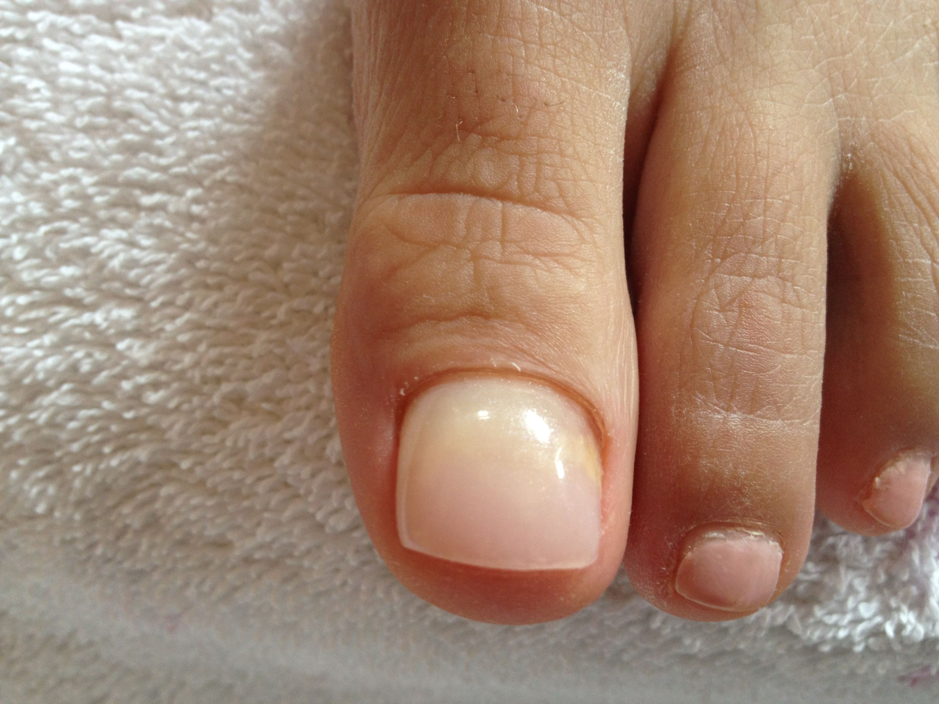 After the application of the Product. Beautiful natural looking nail ...