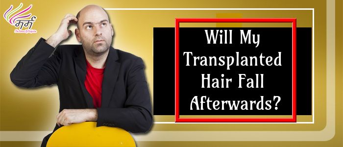 Will My Transplanted Hair Fall Afterwards? | Help hair ...