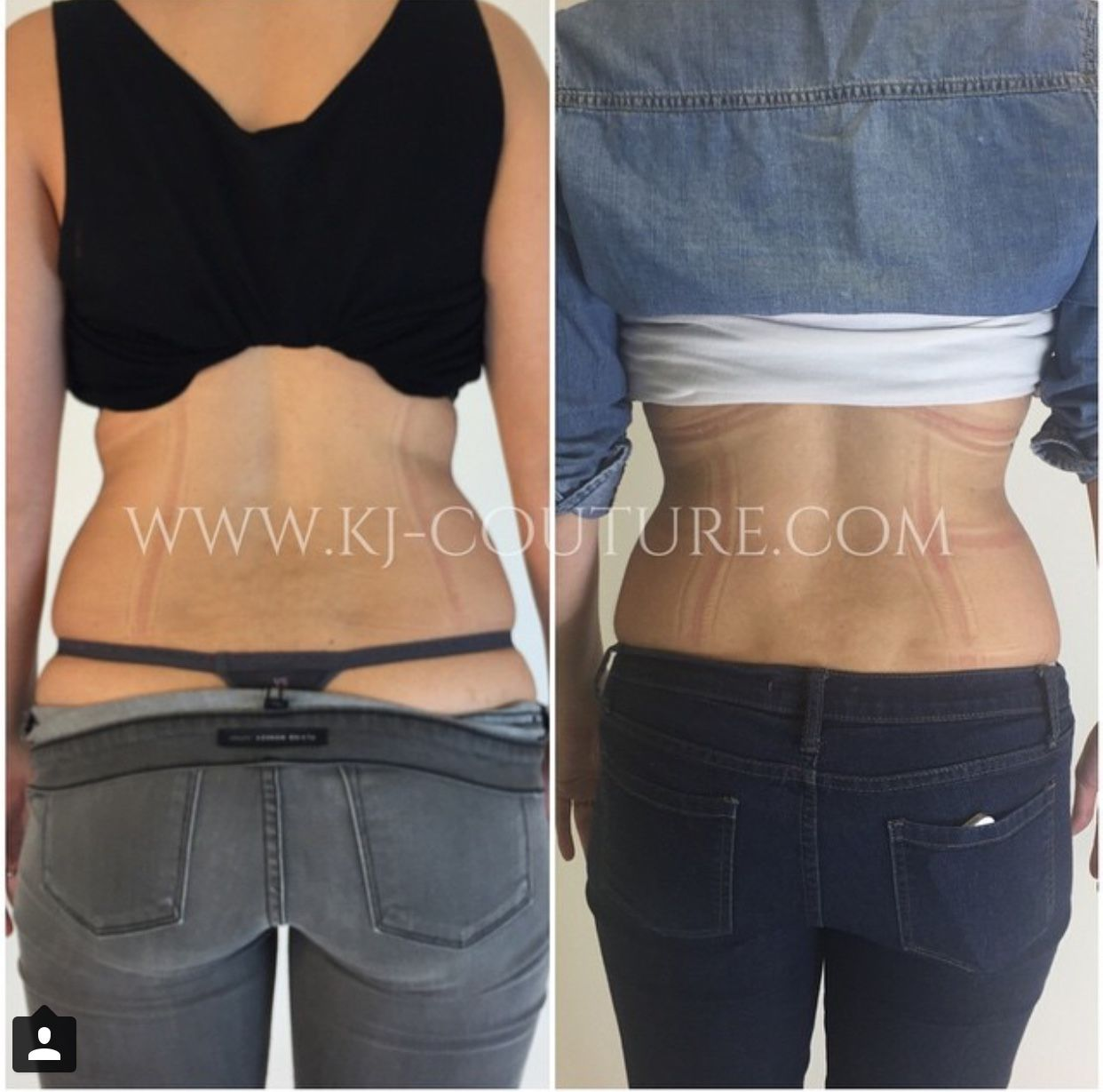 1 week before and after results from using the KJC FAJA