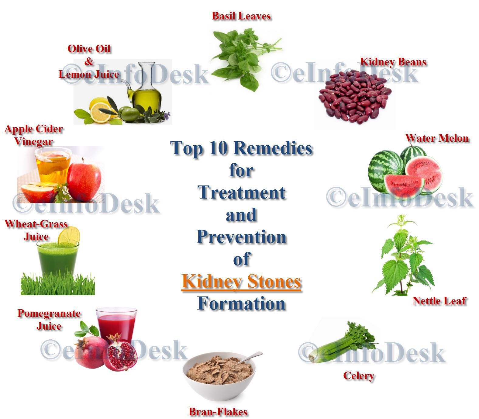 Reme s for Treatment Prevention of kidney Stones