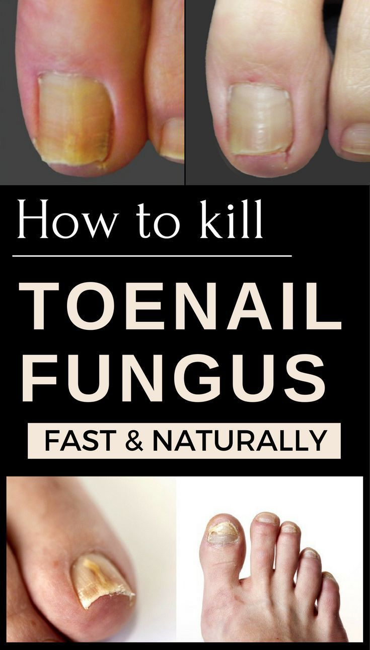Nail fungal infections are caused by tiny microscopic organisms ...