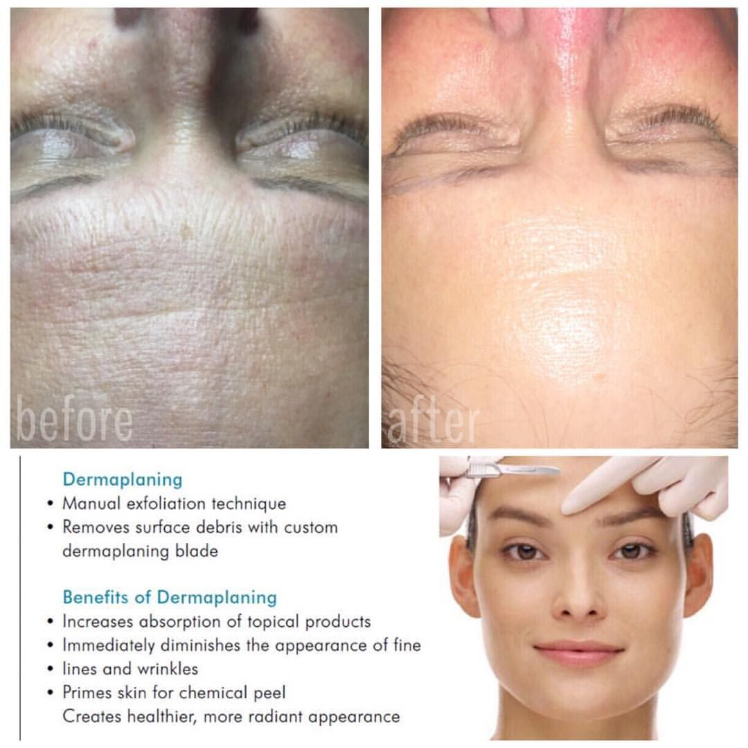 Phenomenal results from a Dermaplane Facial with our