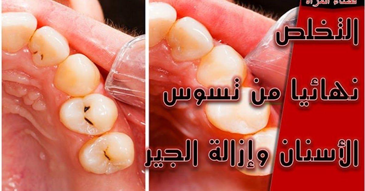 علاج تسوس الاسنان تسوس الاسنان الجير تبييض الاسنان بالفحم تسوس اسنان الاطفال تبييض الاسنان بالملح علاج الم الضرس المسوس التسوس جير Youtube Tooth Decay Cavities
