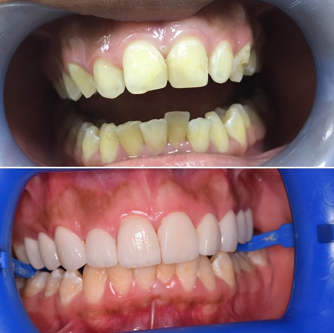 Get straight teeth - Perfectly Straight Teeth 2 Get That White Smile 3 Utilise Dental Veneers 4 No Gaps With No Pain 5 Boost Your Smile 6 Increased Health Benefits