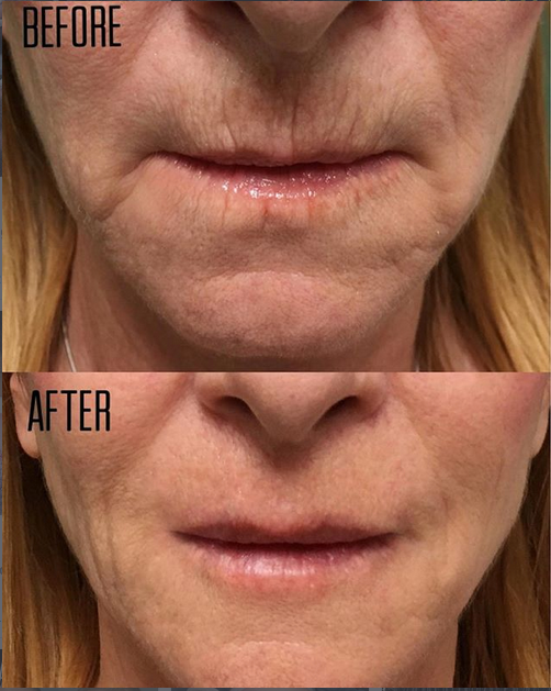 Laser Center Lake Worth Wellness Clinic Palm Beach Gardens Facial Fillers Facial Contouring Skin Tightening Treatments