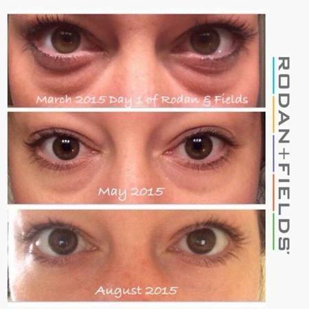 Multifunction Eye Cream Results Multifunction Eye Cream Rodan