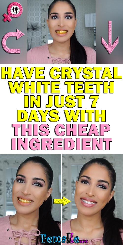 Mit dieser billigen Zutat haben Sie in nur 7 Tagen kristallweiße Zähne   – Beauty