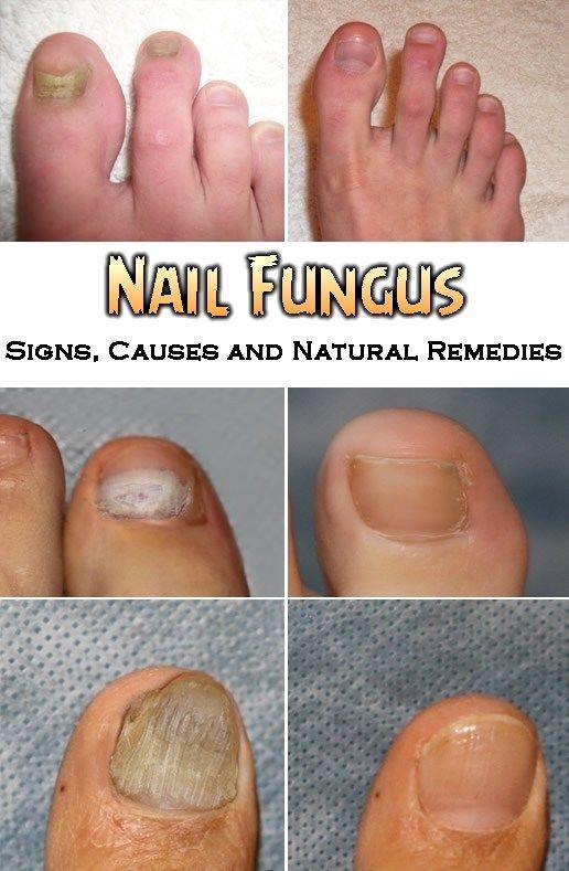 Nail Fungus – Signs, Causes and Natural Remedies   Pinterest ...