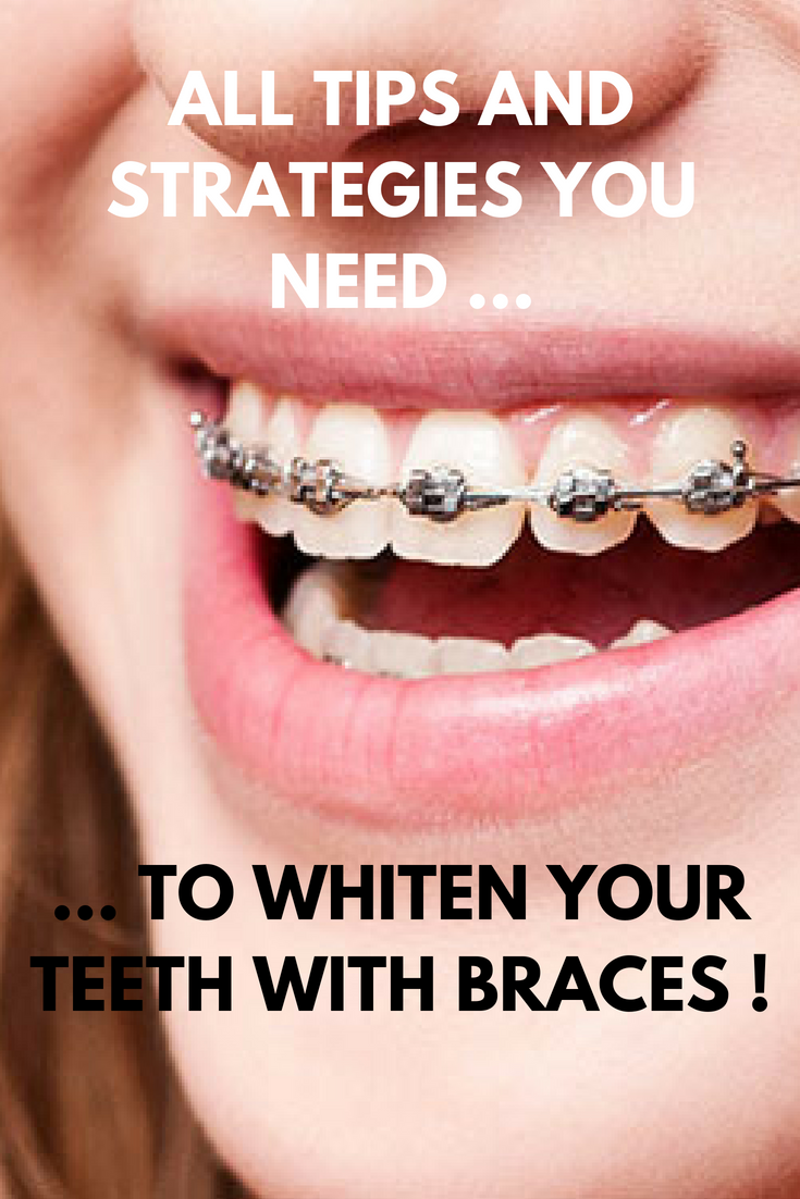 Can You Whiten Your Teeth With Braces And How To Whiten Your Teeth