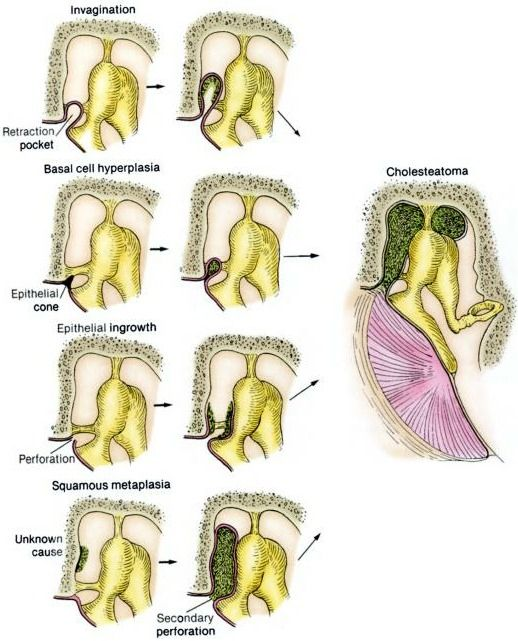 cholesteatoma pathogenesis:  remember any causes for retraction pockets?  what are the risk factors?  - serous otitis media (OME) is the most important risk factor for retraction pocket in the TM.  see http://archotol.jamanetwork.com/article.aspx?volume=118=12=1298
