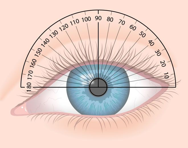 How To Read Your Eyeglass Prescription Eye Facts Astigmatism Eyes Problems