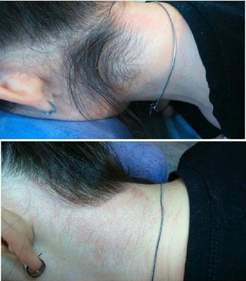 Hair removal by electrolysis | Hair Removal | Electrolysis