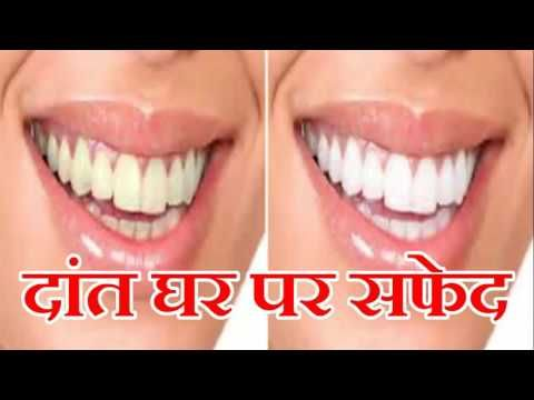 Whiten Your Yellow Teeth Naturally At Home In Hindi Beauty Tips