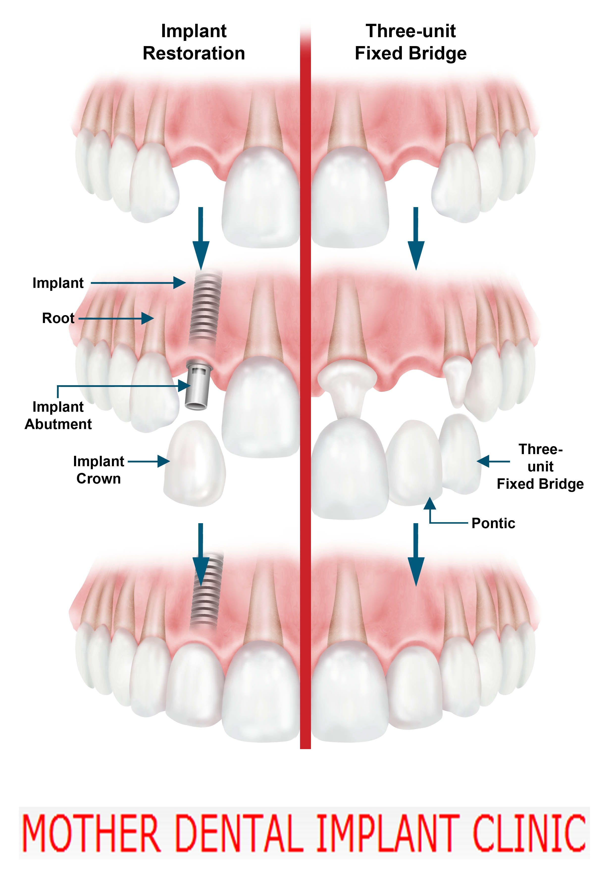 How Much Does It Cost To Get A Bridge Tooth