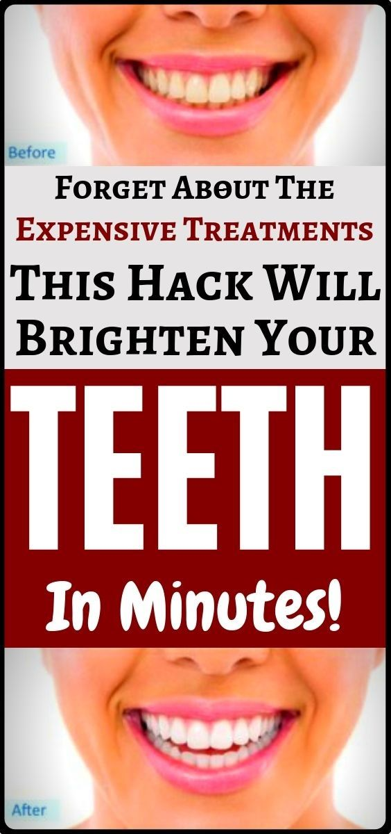 Turn your yellow teeth white with these easy home tricks