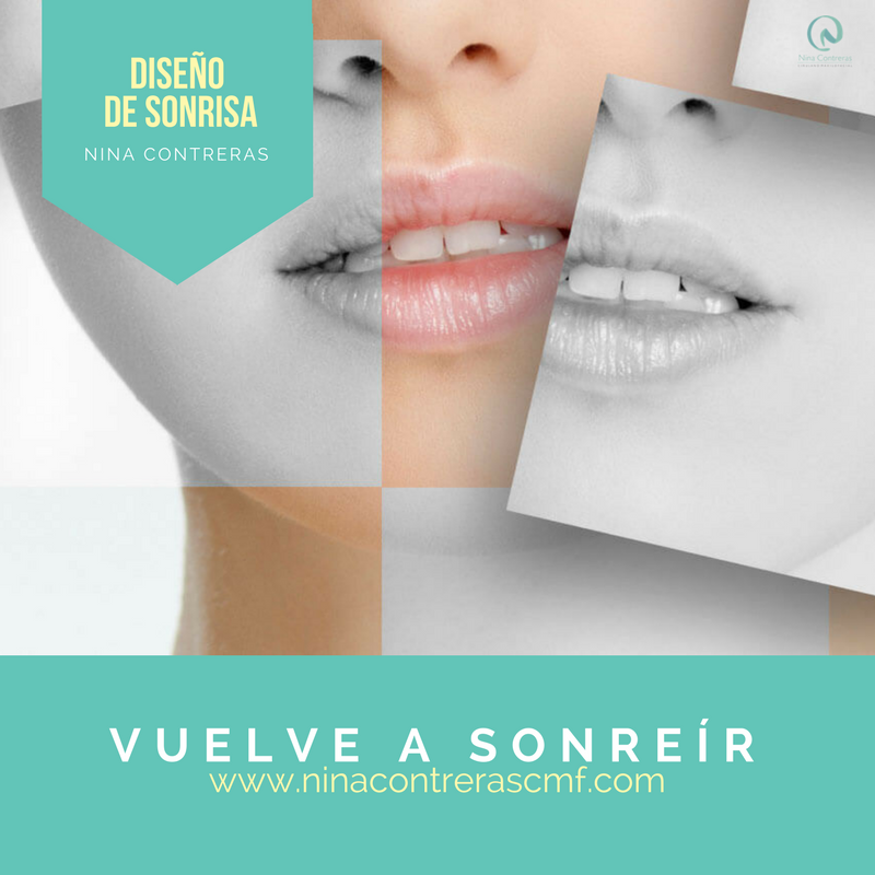 Vuelve A Sonreír Sonríe De Forma Natural Luce Una Sonrisa Que Robe Miradas Le Damos Forma A Una Sonri Odontología Estetica Odontología Clinica Odontologica