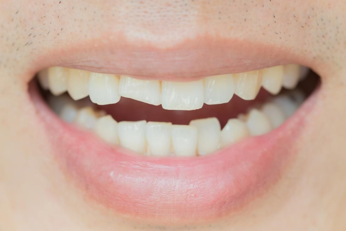 Fractured or broken teeth there is no way to treat a