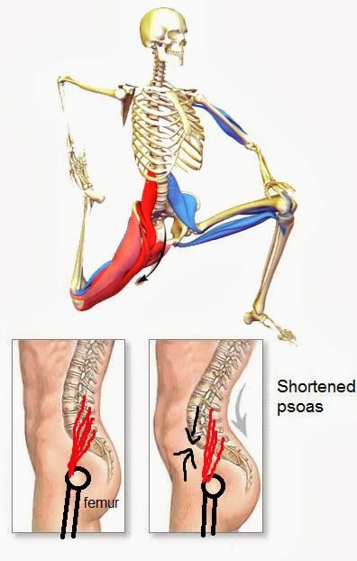 Músculo psoas acortado es causa común del dolor en la espalda baja ...