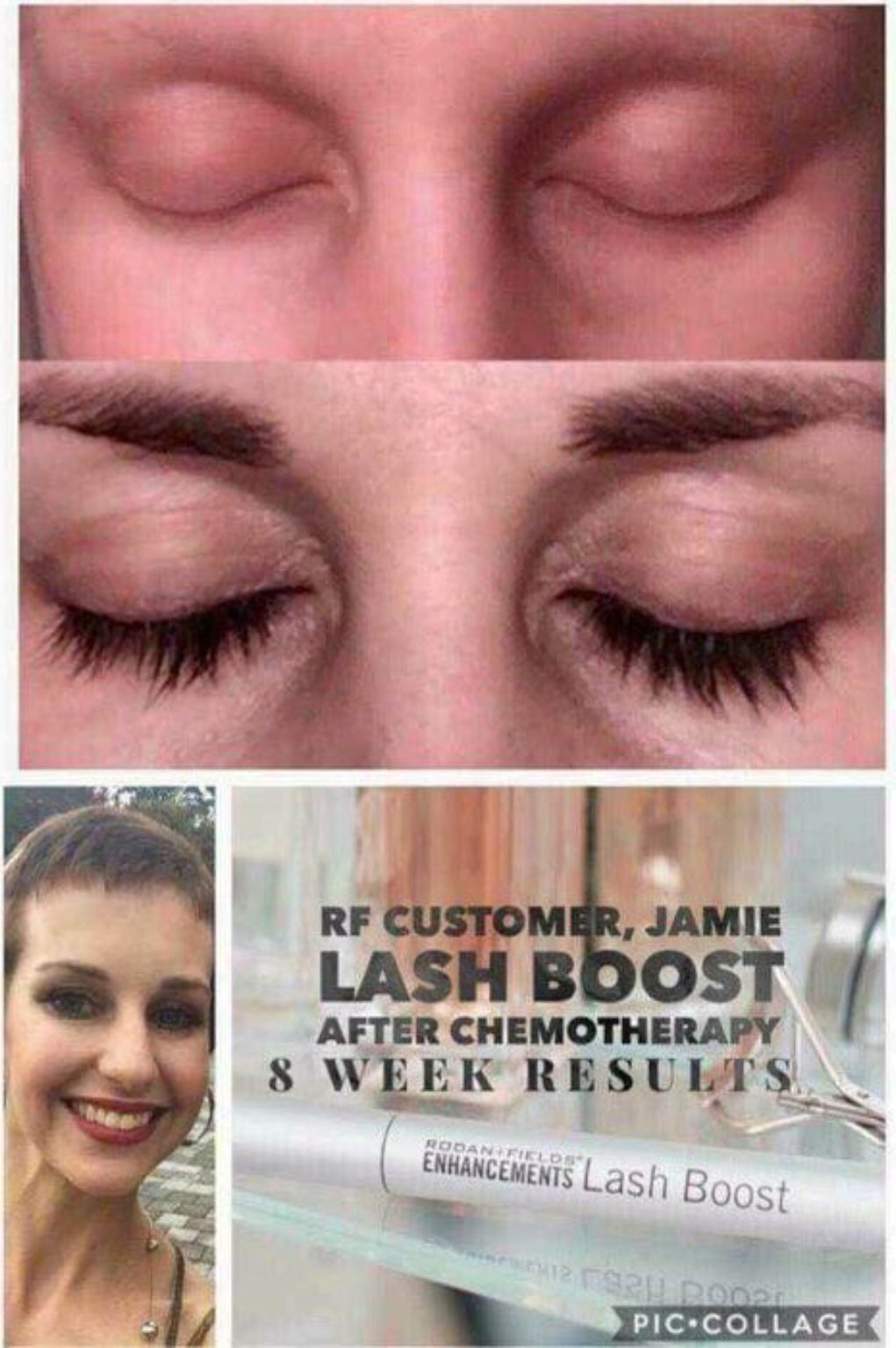 During Chemotherapy Jamie Lost Her Lashes And Brows Thanks To Lash
