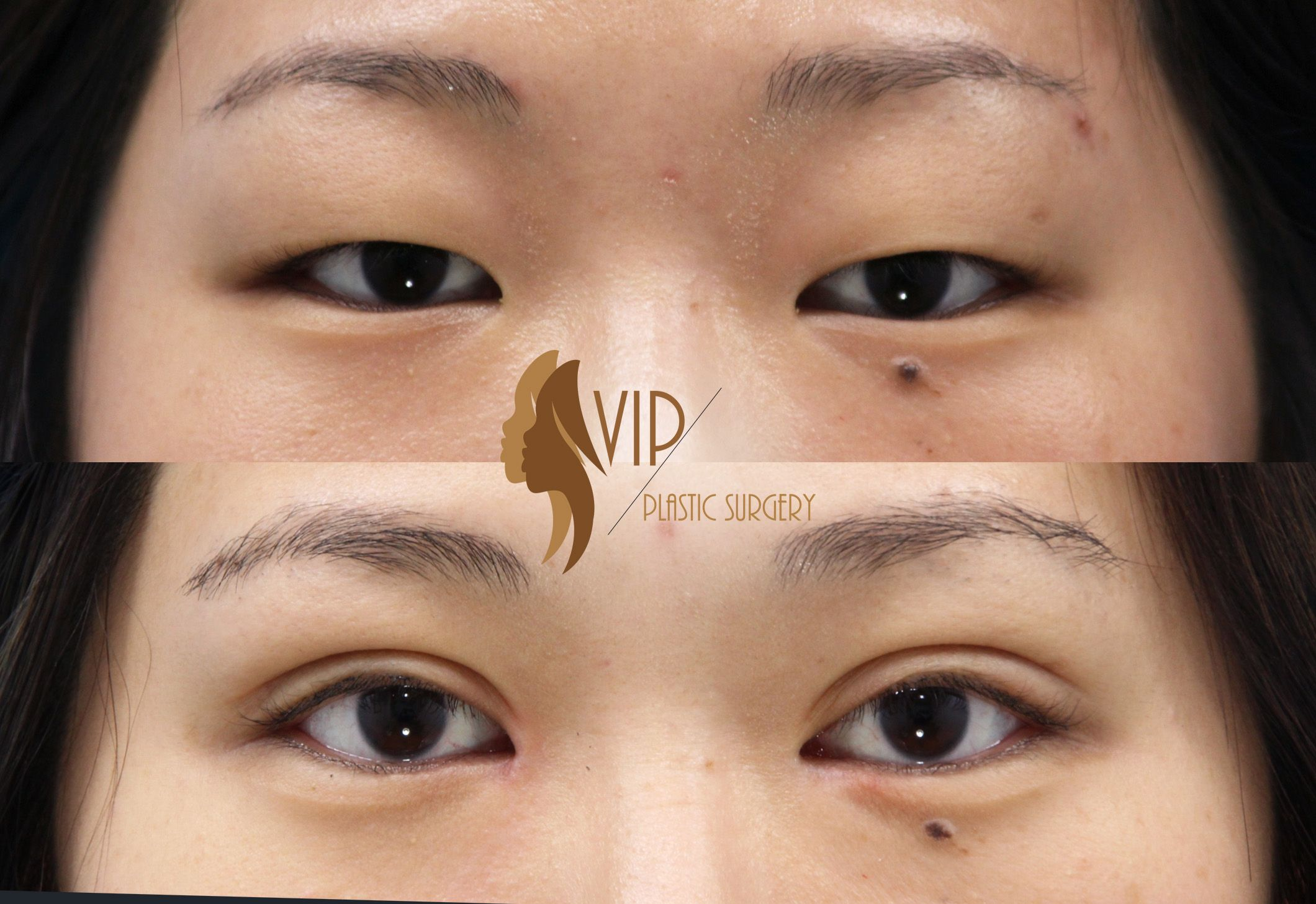 Asian Blepharoplasty (Double eyelid surgery) by VIP