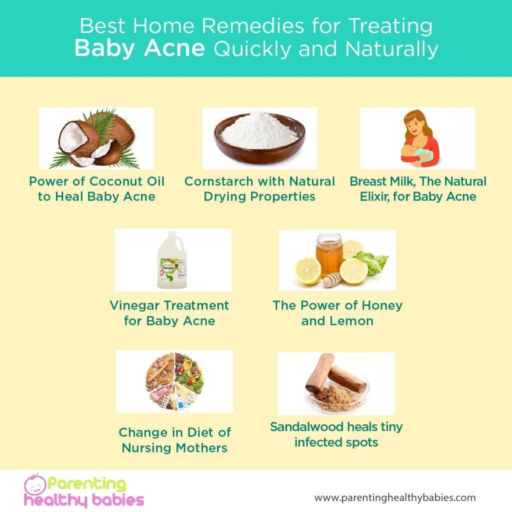Baby Acne Breast Milk Treatment