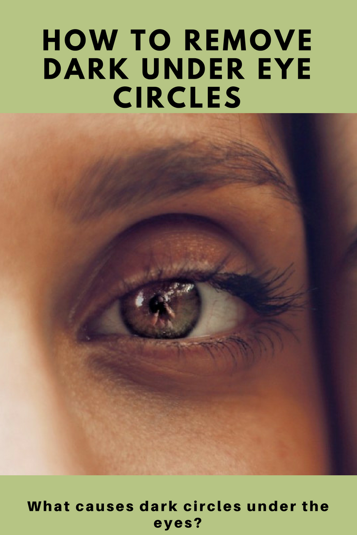How To Remove Dark Circles Under The Eyes | Remove dark ...