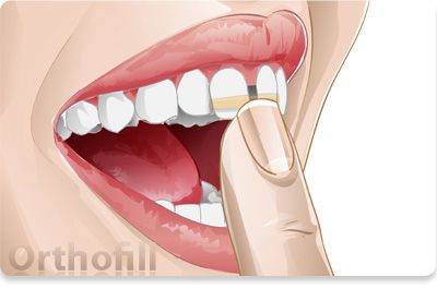 Orthofill Bands Were Developed By Orthodontists As A Quick