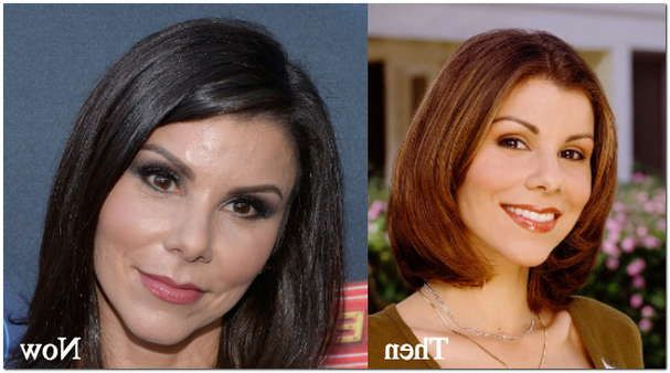 Heather Dubrow Plastic Surgery Before After Plastic Surgery Plastic Surgery Before After Cosmetic Surgery
