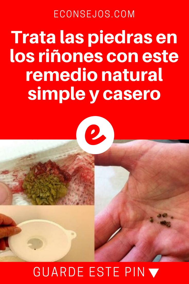 trata las piedras en los riñones con este remedio natural simple y
