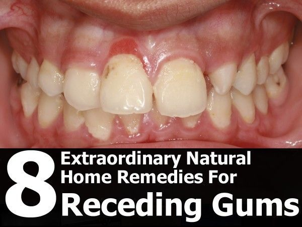 natural-remedies-for-receding-gums