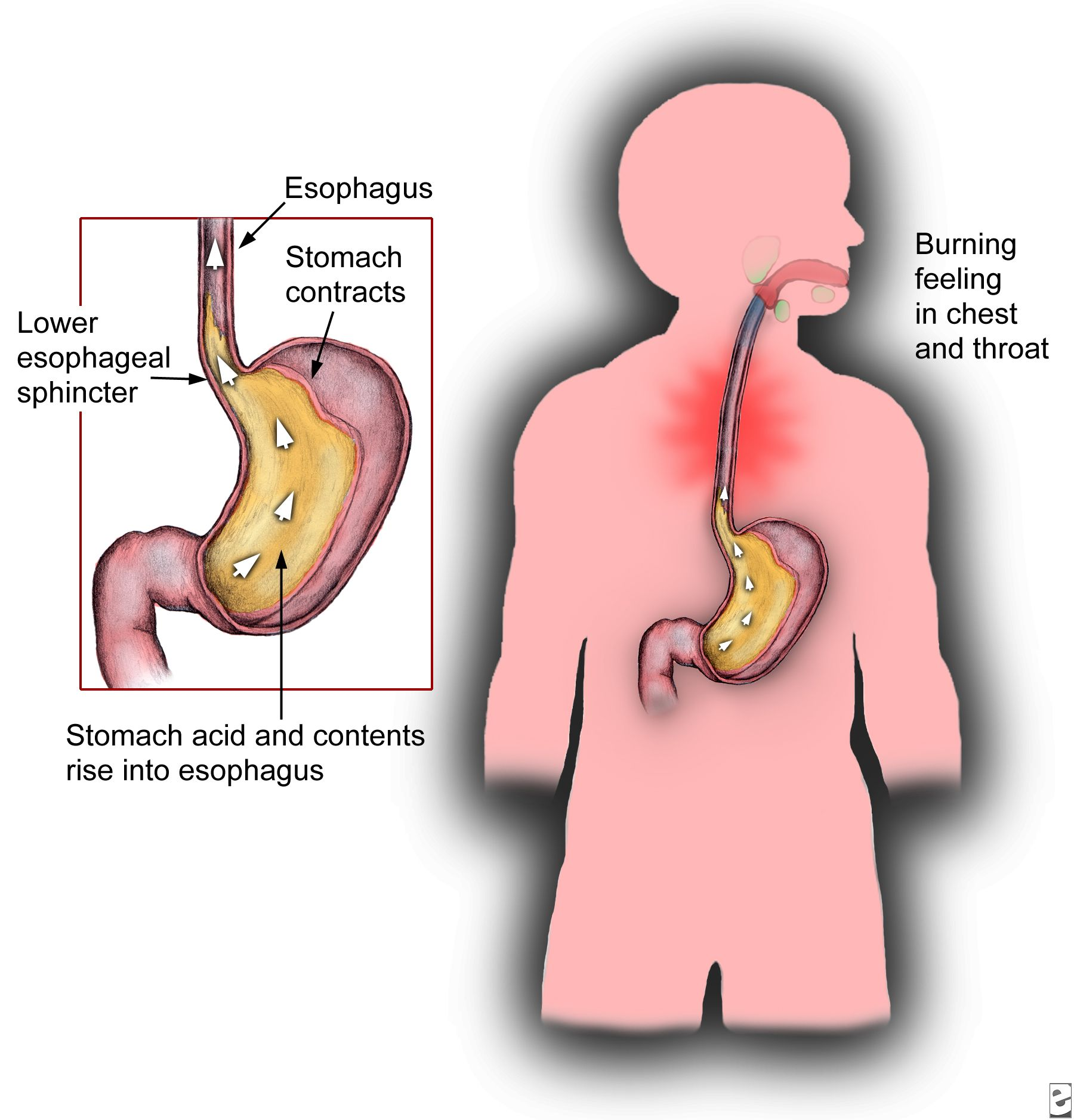 Understanding the Anatomy of Heartburn pictures