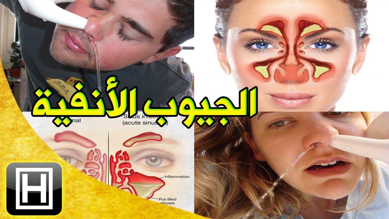 أرخص علاج لإلتهاب الجيوب الأنفية وتنقية مساراتها والتخلص من حساسية الأنف نهائيا Health Food Sinusitis Carnival Face Paint