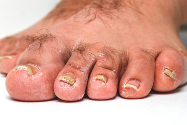How To Get Rid Of A Fungal Infection On Your Toenail ...