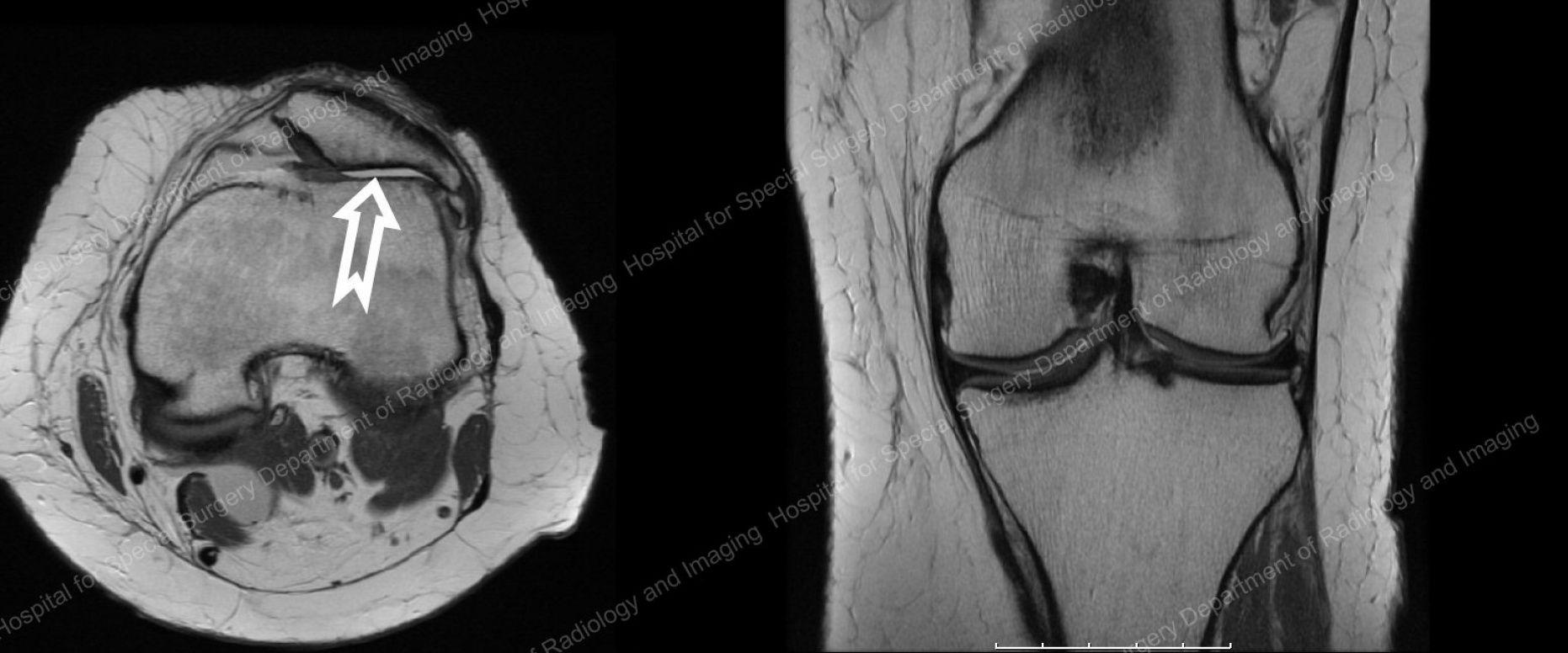 What Does Arthritis Look Like On An Mri   Arthritis   Pinterest ...