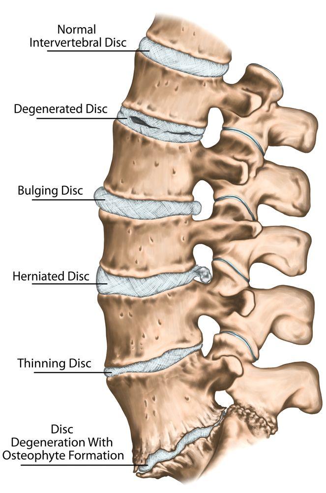 Uit onderzoek blijkt CBD effectief de oorzaak van rugpijn door versleten tussenwervelschijven aan te kunnen pakken. Hiermee is het een veilig alternatief op (soms schadelijke) rugpijn-medicijnen.