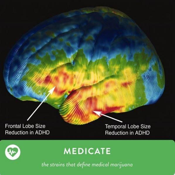 Cannabis treats ADHD