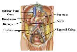 varicoza organelor pelvis