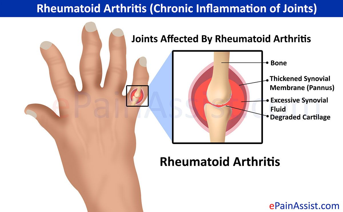 Natural Remedies For Rheumatoid Arthritis And Lupus