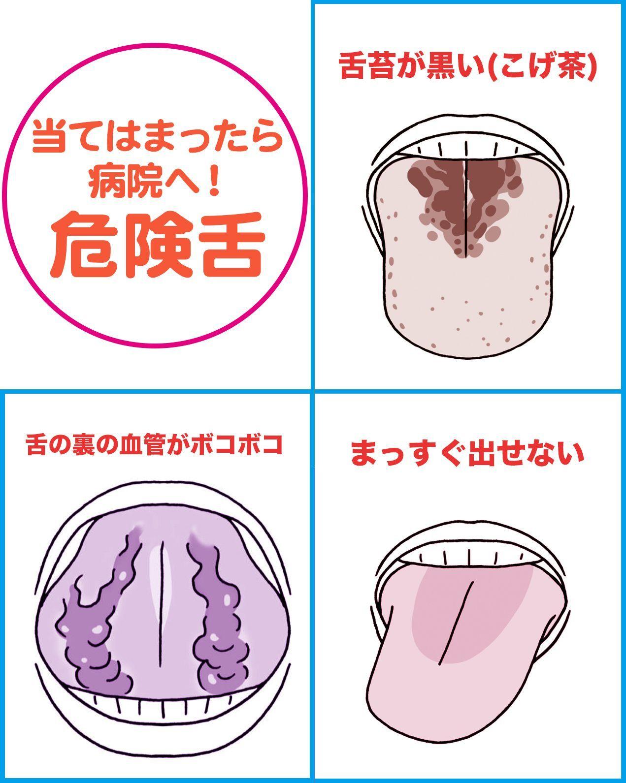 で を 結ぶ 紐 舌