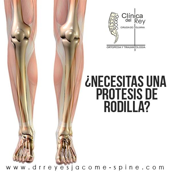 Las Superficies De La Articulación De La Rodilla Pueden Estar Dañadas Por La Artrosis Proceso Que Provoca El Desgaste D Cirugía De Columna Rodillas Cirugia