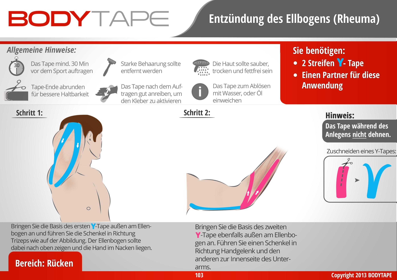Nett Ellenbogen Bänder Galerie - Anatomie Von Menschlichen ...