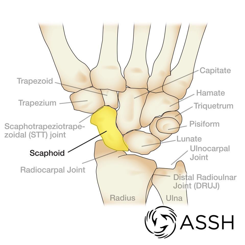 Scaphoid | NATURAL WRAP PRJCT | Pinterest | Anatomy