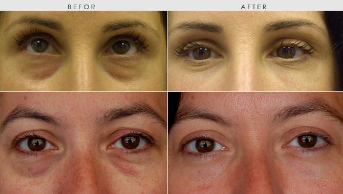 Preparation H كريم البواسير سر الخبراء بالقضاء على الهالات السوداء و التجاعيد و إنتفاخ العيون Skin Skin Care Health